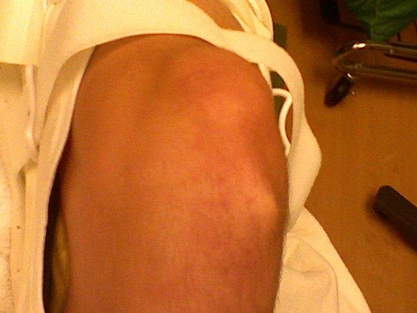 Front Shot - Knee
